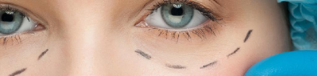 Disminución bolsas en ojos