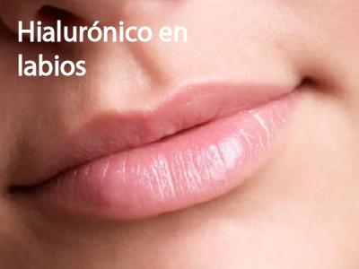 Acido Hialuronico para labios