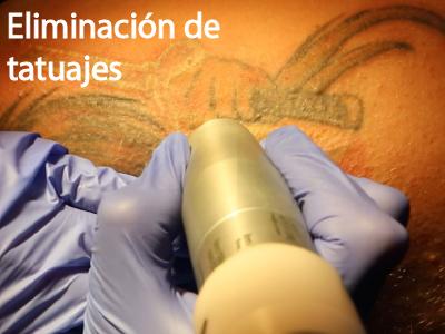 Eliminacion de tatuajes con laser en jerez de la frontera