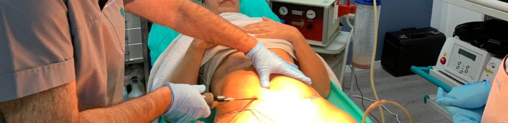 Técnica para grasa abdominal imagen realizada