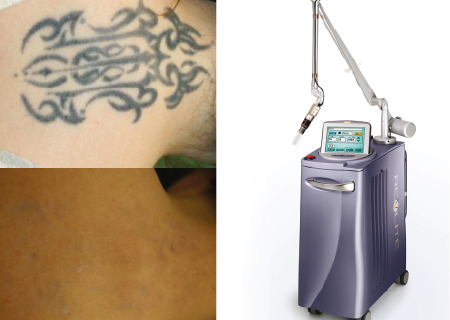 Maquina de eliminación de tatuajes
