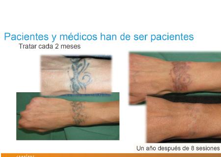 proceso de eliminación de tatuaje
